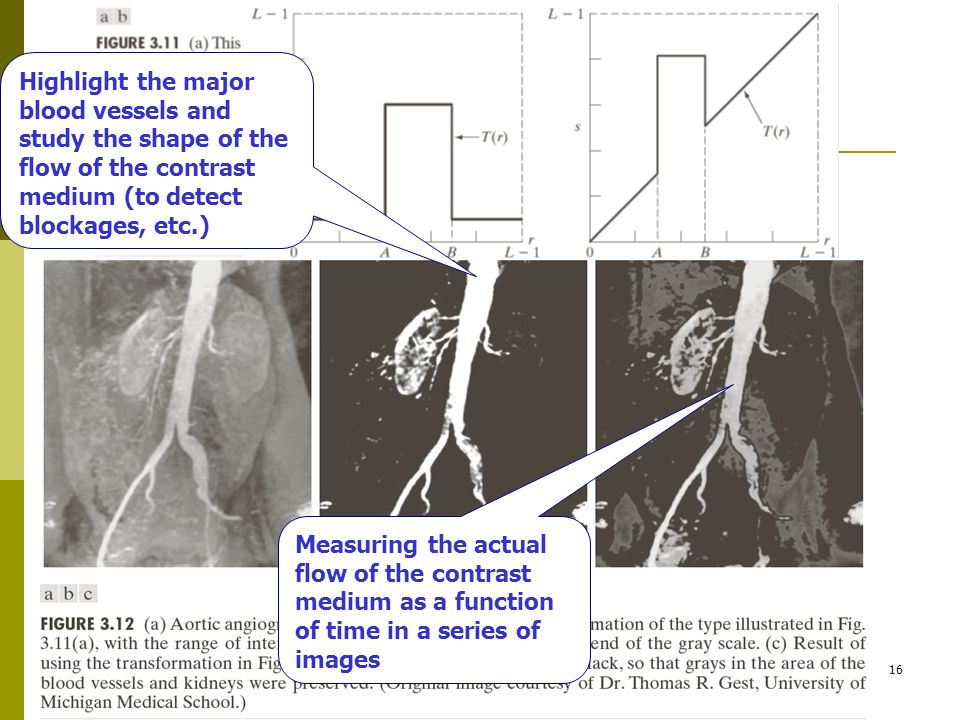 4/27/201516 Highlight the major blood vessels and study the shape of the flow of the contrast medium (to detect blockages, etc.) Measuring the actual flow of the contrast medium as a function of time in a series of images