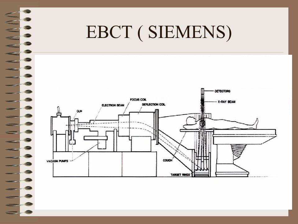 EBCT ( SIEMENS)