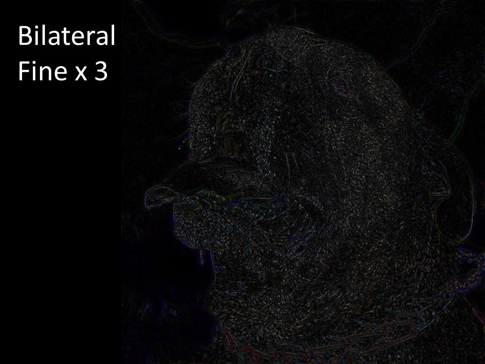 Bilateral Fine x 3