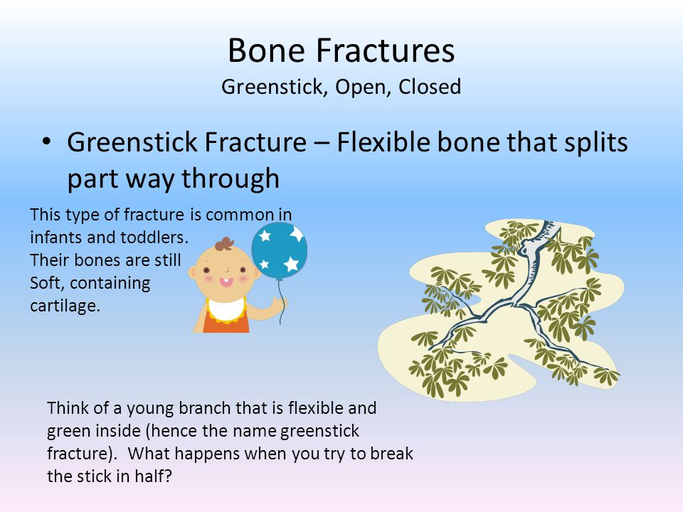 Bone Fractures Greenstick, Open, Closed Greenstick Fracture – Flexible bone that splits part way through This type of fracture is common in infants and toddlers.