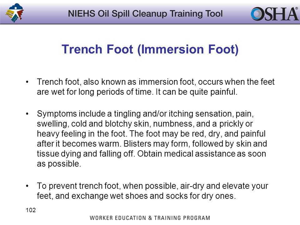 Trench Foot (Immersion Foot) Trench foot, also known as immersion foot, occurs when the feet are wet for long periods of time. It can be quite painful