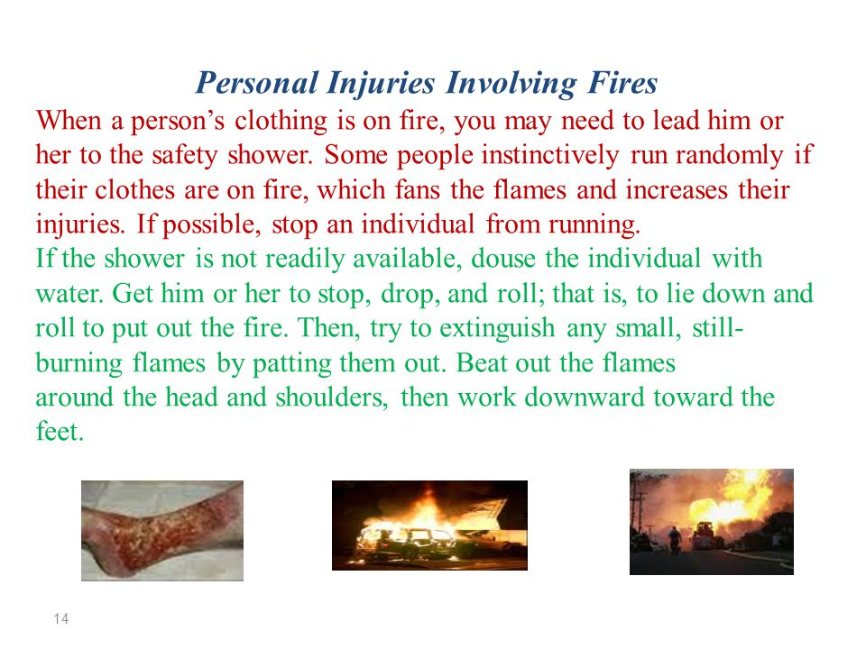 Personal Injuries Involving Fires When a person's clothing is on fire, you may need to lead him or her to the safety shower.