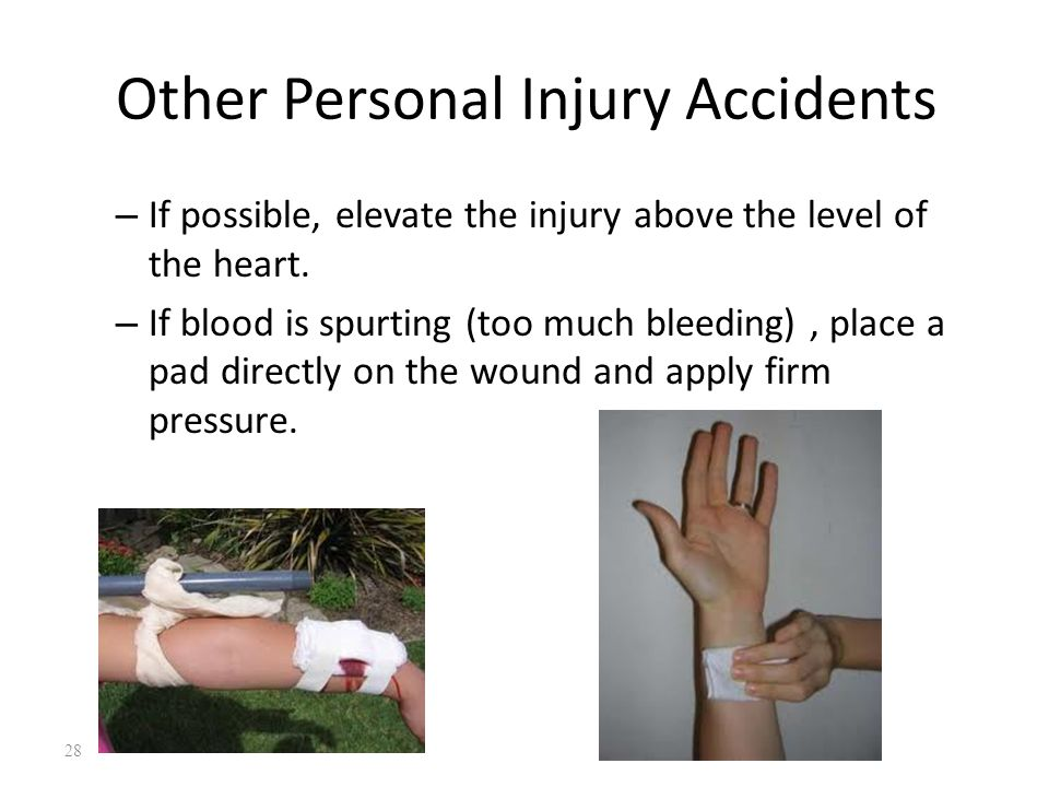 Other Personal Injury Accidents – If possible, elevate the injury above the level of the heart.