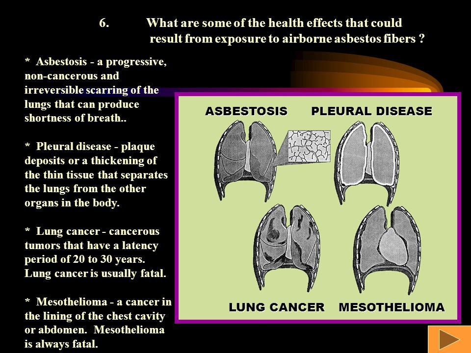 ASBESTOSIS PLEURAL DISEASE LUNG CANCER MESOTHELIOMA 6.