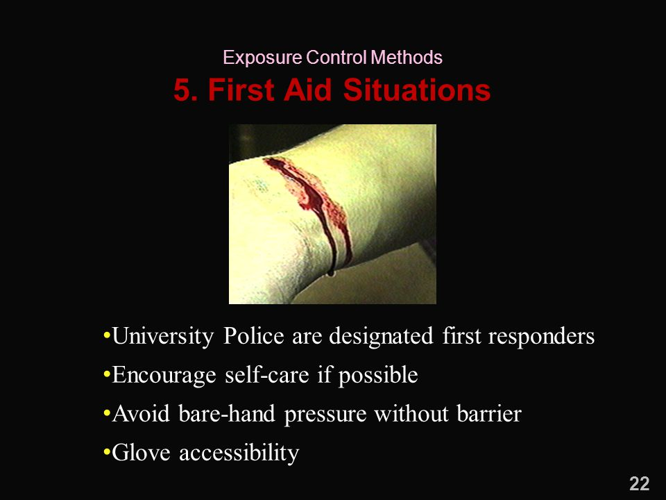 5. First Aid Situations University Police are designated first responders Encourage self-care if possible Avoid bare-hand pressure without barrier Glo