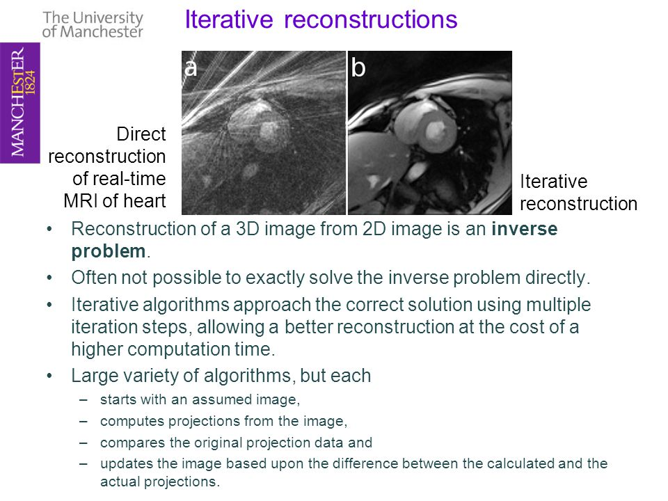 Iterative reconstructions Reconstruction of a 3D image from 2D image is an inverse problem.