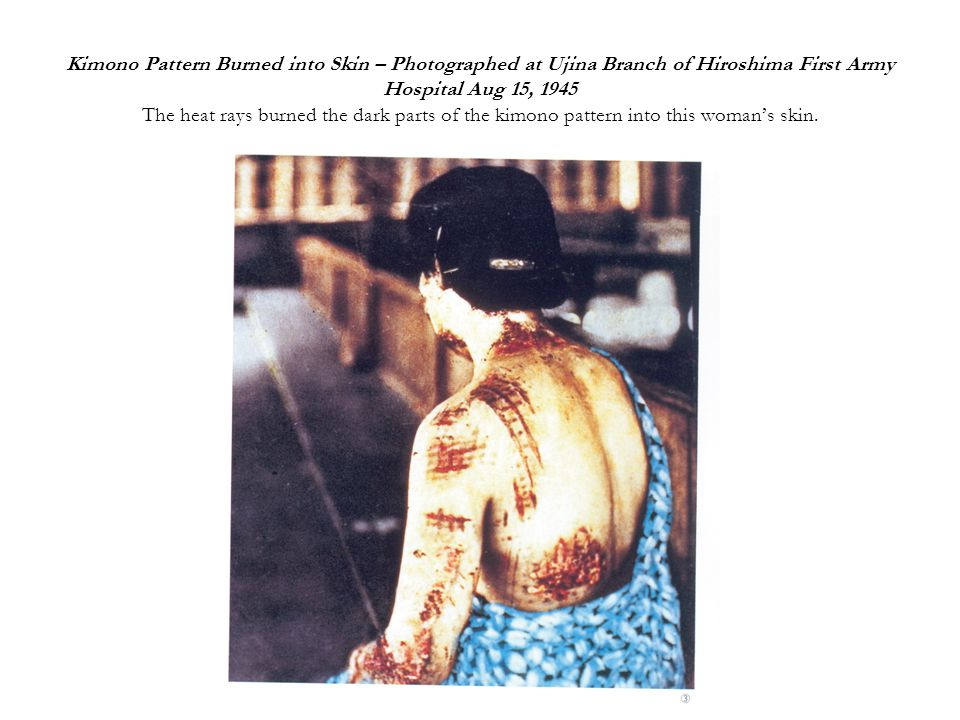 Kimono Pattern Burned into Skin – Photographed at Ujina Branch of Hiroshima First Army Hospital Aug 15, 1945 The heat rays burned the dark parts of the kimono pattern into this woman's skin.
