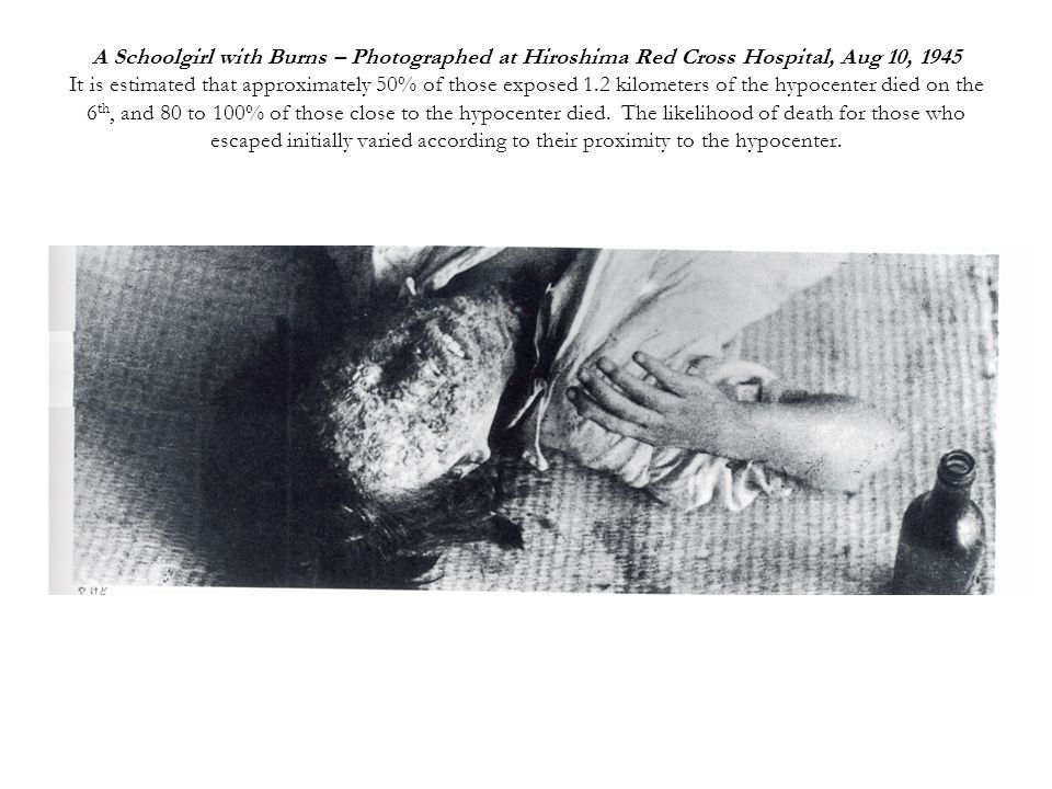 A Schoolgirl with Burns – Photographed at Hiroshima Red Cross Hospital, Aug 10, 1945 It is estimated that approximately 50% of those exposed 1.2 kilometers of the hypocenter died on the 6 th, and 80 to 100% of those close to the hypocenter died.