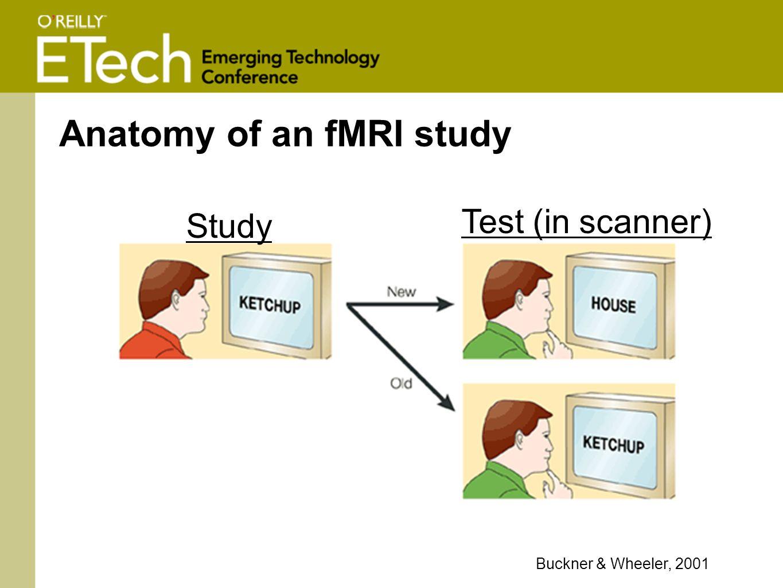Anatomy of an fMRI study Buckner & Wheeler, 2001 Study Test (in scanner)