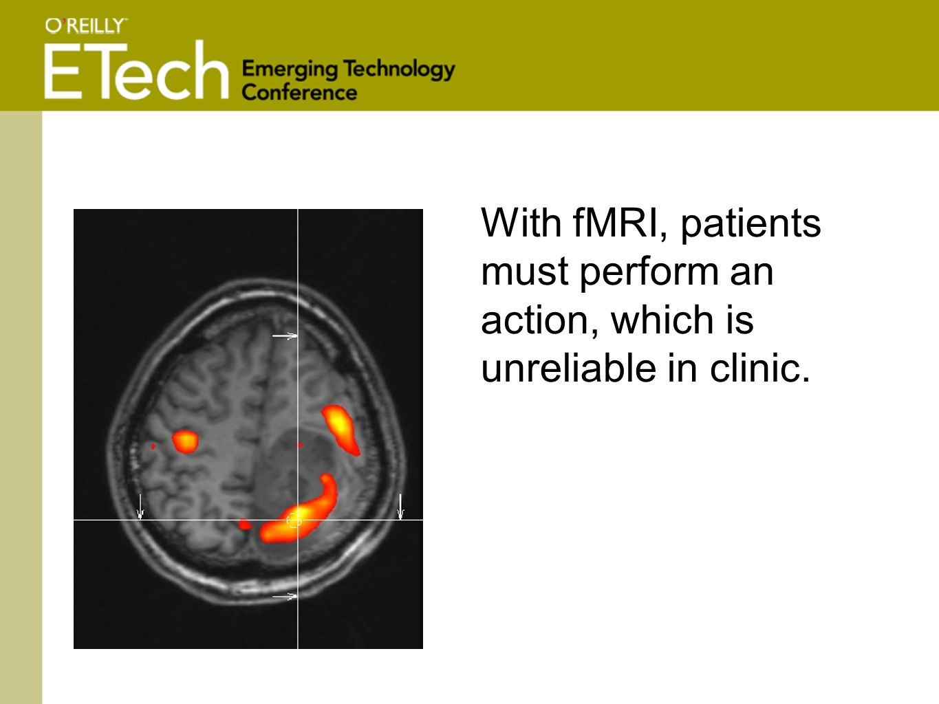 With fMRI, patients must perform an action, which is unreliable in clinic.