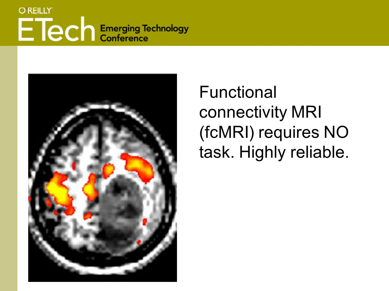 Functional connectivity MRI (fcMRI) requires NO task. Highly reliable.