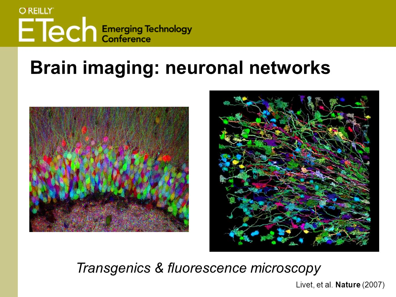 Brain imaging: neuronal networks Livet, et al. Nature (2007) Transgenics & fluorescence microscopy