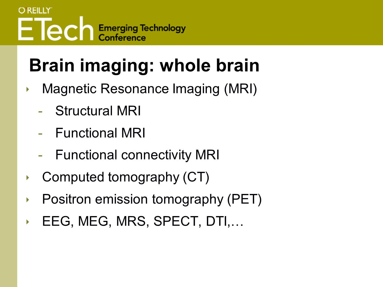 Brain imaging: whole brain ‣ Magnetic Resonance Imaging (MRI) -Structural MRI -Functional MRI -Functional connectivity MRI ‣ Computed tomography (CT) ‣ Positron emission tomography (PET) ‣ EEG, MEG, MRS, SPECT, DTI,…