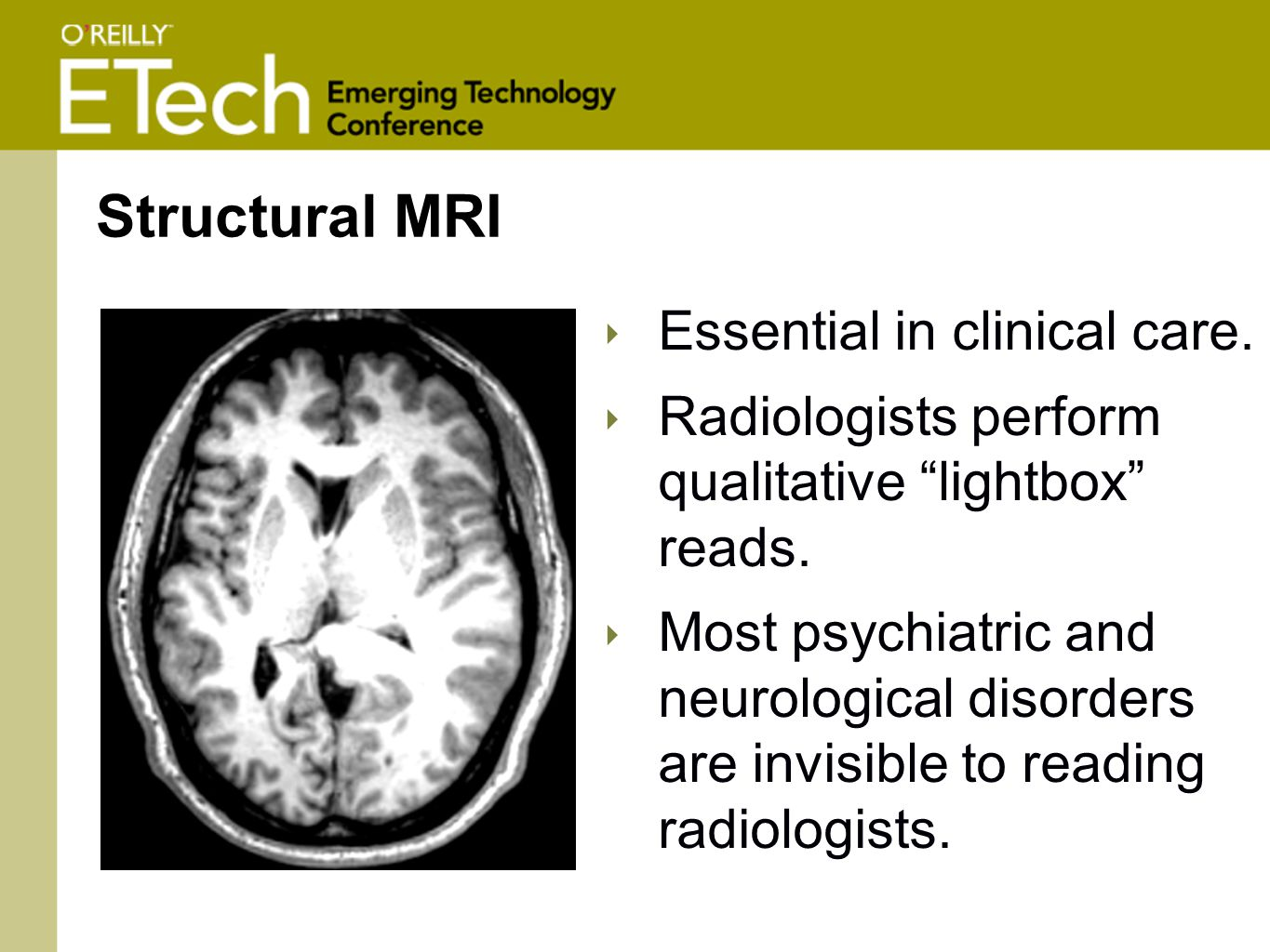 ‣ Essential in clinical care. ‣ Radiologists perform qualitative lightbox reads.