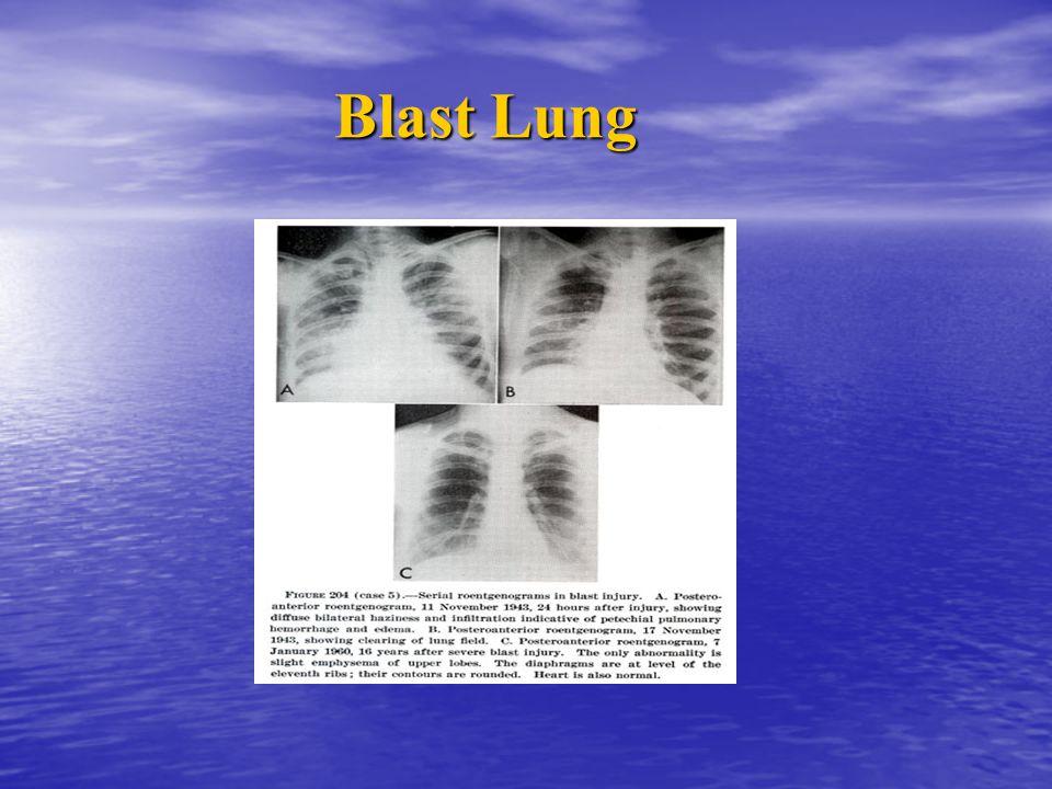 Blast Lung Blast Lung