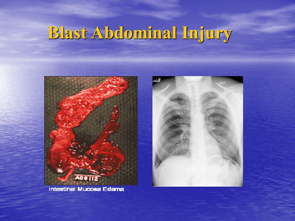 Blast Abdominal Injury