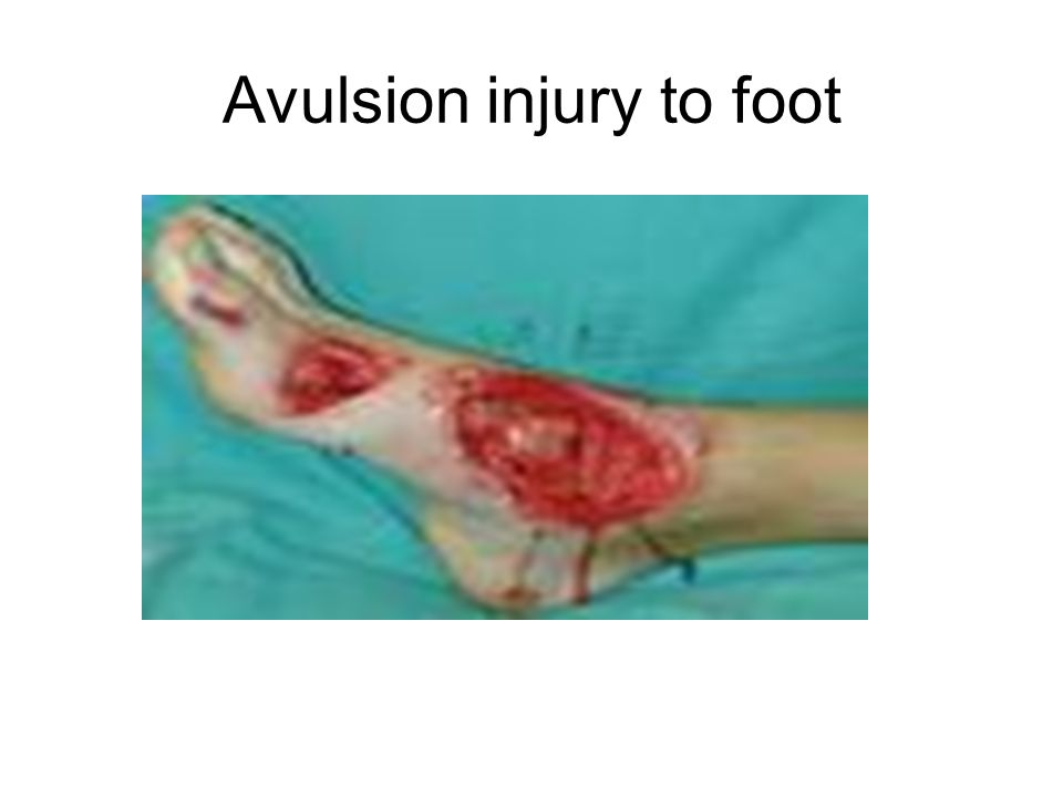 Avulsion injury to foot