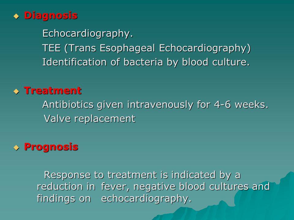  Diagnosis Echocardiography.