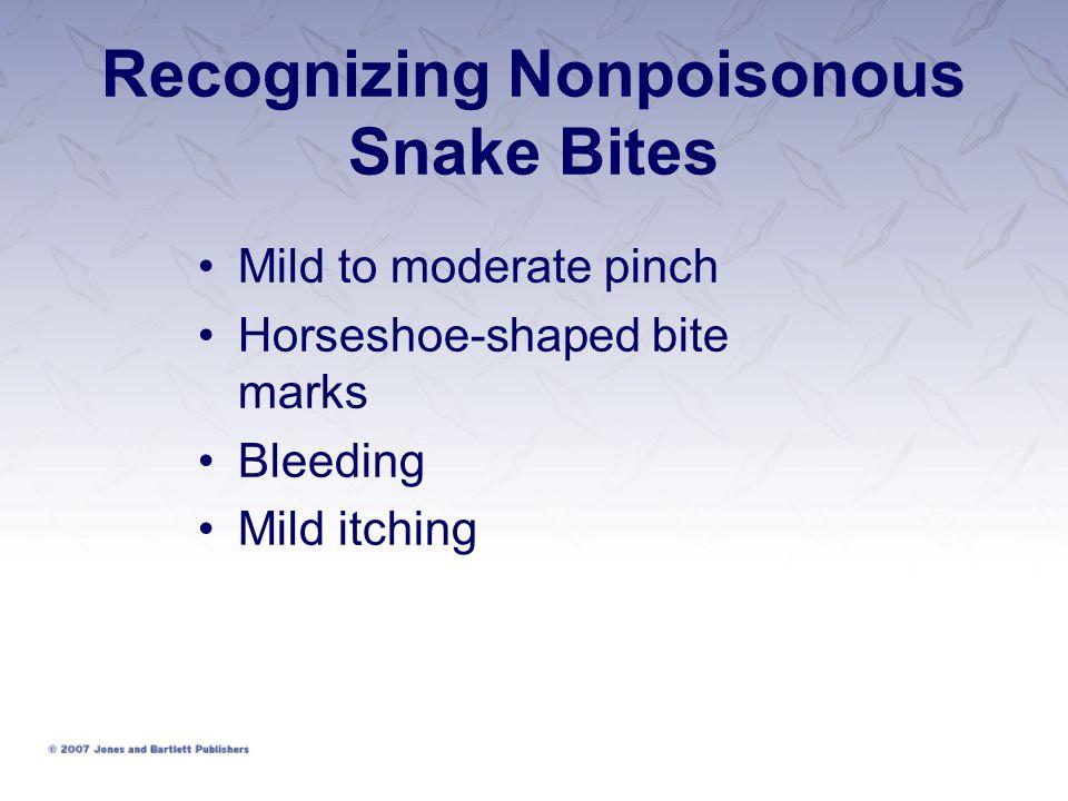 Recognizing Nonpoisonous Snake Bites Mild to moderate pinch Horseshoe-shaped bite marks Bleeding Mild itching