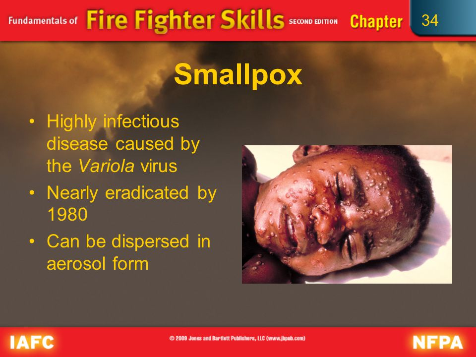 34 Smallpox Highly infectious disease caused by the Variola virus Nearly eradicated by 1980 Can be dispersed in aerosol form