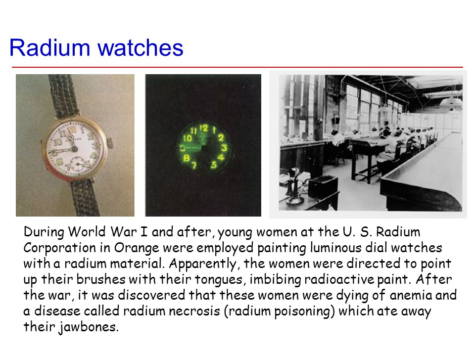 Radium watches During World War I and after, young women at the U. S. Radium Corporation in Orange were employed painting luminous dial watches with a