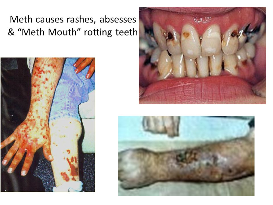 Meth causes rashes, absesses & Meth Mouth rotting teeth