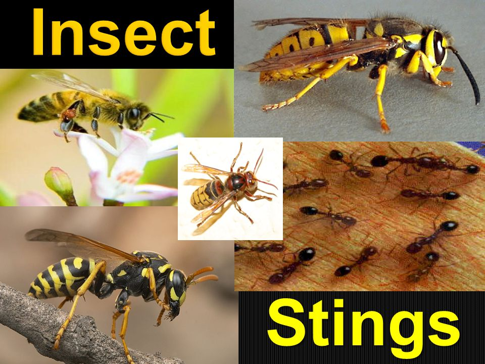  Although many different types of insects in the United States are able to inflict a poisonous bite or sting, the insects most likely to cause medical problems are bees, wasps (including paper wasps, hornets, and yellow jackets), and ants (including the fire ant).