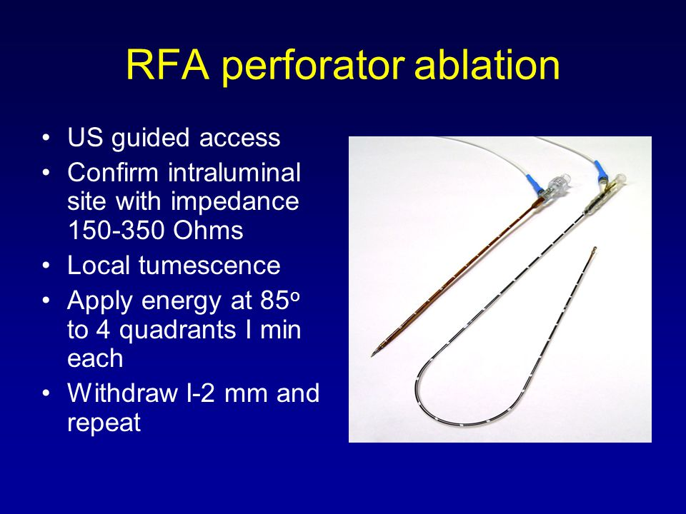 RFA perforator ablation US guided access Confirm intraluminal site with impedance 150-350 Ohms Local tumescence Apply energy at 85 o to 4 quadrants I