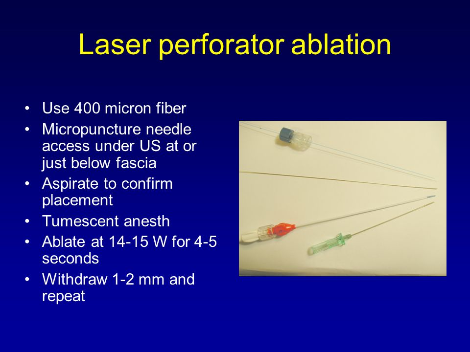 Laser perforator ablation Use 400 micron fiber Micropuncture needle access under US at or just below fascia Aspirate to confirm placement Tumescent an