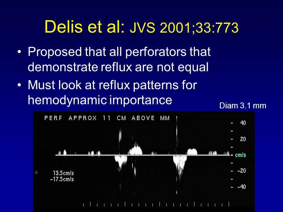 Delis et al: JVS 2001;33:773 Proposed that all perforators that demonstrate reflux are not equal Must look at reflux patterns for hemodynamic importan