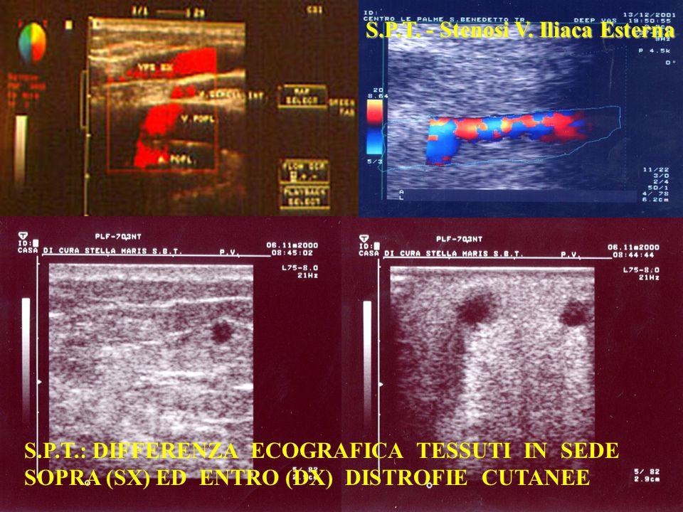 S.P.T.: DIFFERENZA ECOGRAFICA TESSUTI IN SEDE SOPRA (SX) ED ENTRO (DX) DISTROFIE CUTANEE S.P.T.