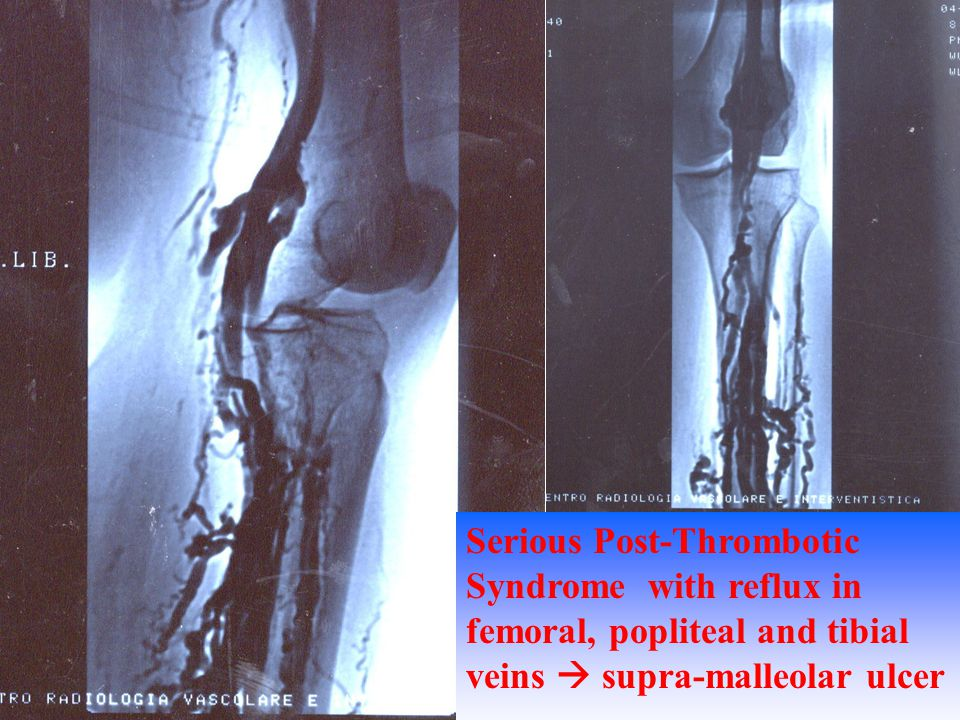Serious Post-Thrombotic Syndrome with reflux in femoral, popliteal and tibial veins  supra-malleolar ulcer