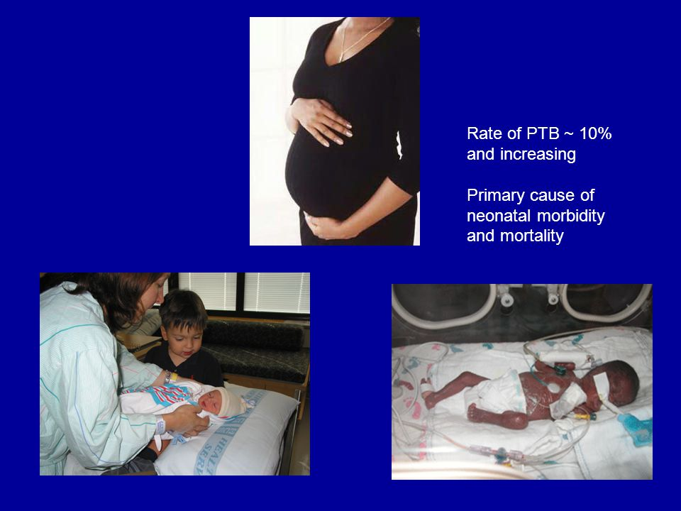 Rate of PTB ~ 10% and increasing Primary cause of neonatal morbidity and mortality