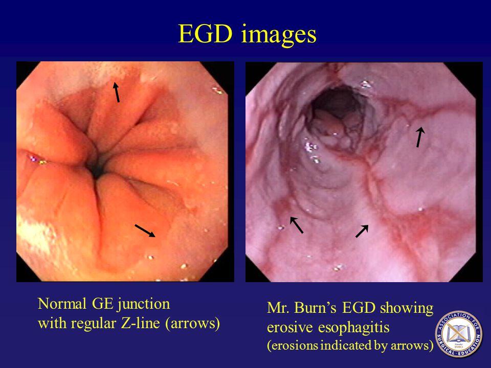 EGD images Normal GE junction with regular Z-line (arrows) Mr. Burn's EGD showing erosive esophagitis (erosions indicated by arrows)
