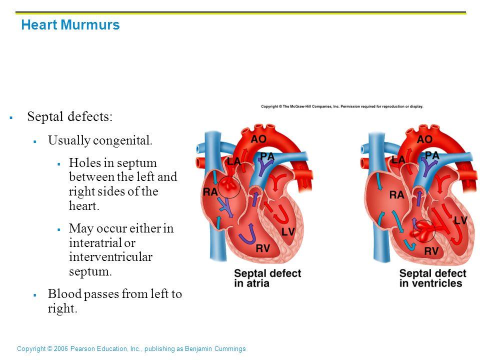 Copyright © 2006 Pearson Education, Inc., publishing as Benjamin Cummings Heart Murmurs  Septal defects:  Usually congenital.