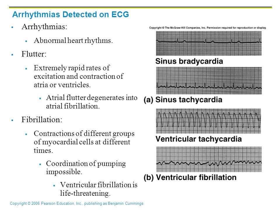 Copyright © 2006 Pearson Education, Inc., publishing as Benjamin Cummings Arrhythmias Detected on ECG  Arrhythmias:  Abnormal heart rhythms.