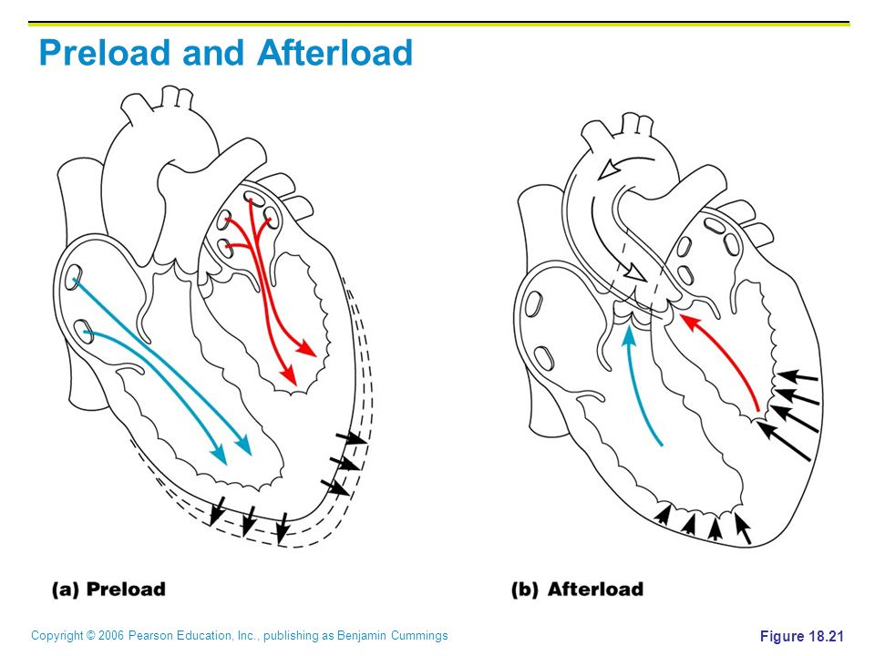 Copyright © 2006 Pearson Education, Inc., publishing as Benjamin Cummings Preload and Afterload Figure 18.21