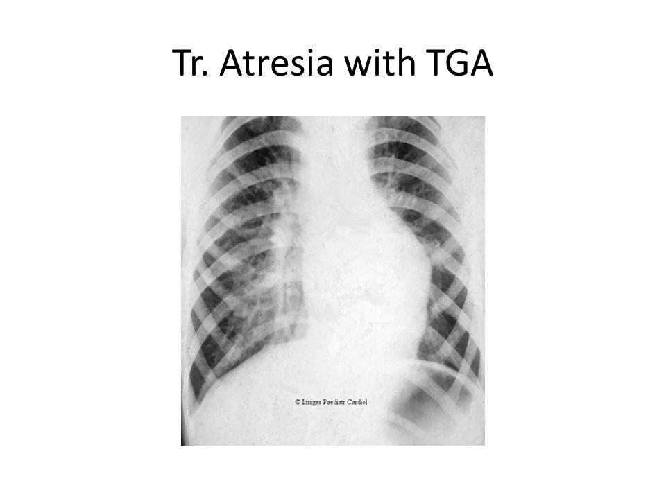 Tr. Atresia with TGA