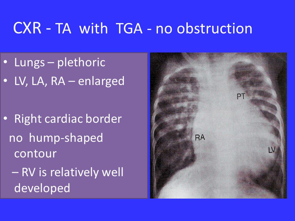 CXR - TA with TGA - no obstruction Lungs – plethoric LV, LA, RA – enlarged Right cardiac border no hump-shaped contour – RV is relatively well developed