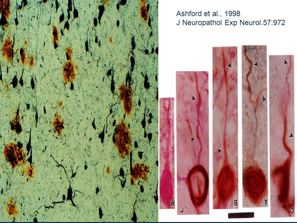 Ashford et al., 1998 J Neuropathol Exp Neurol.57:972