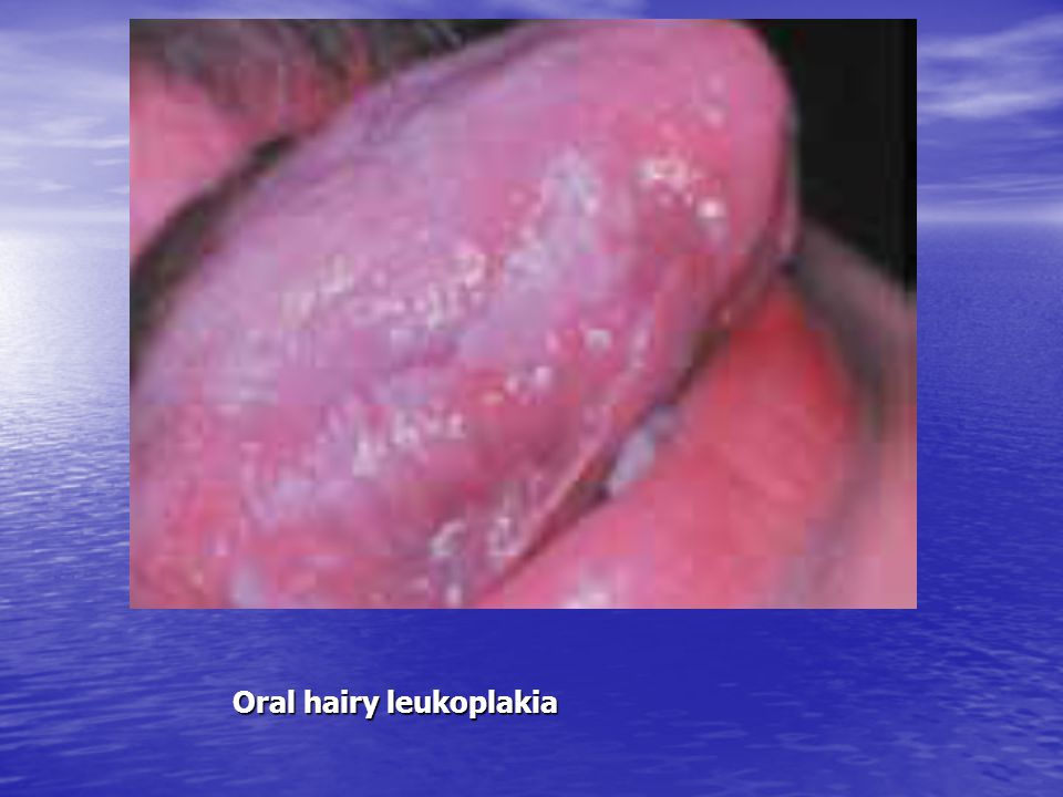 Oral hairy leukoplakia
