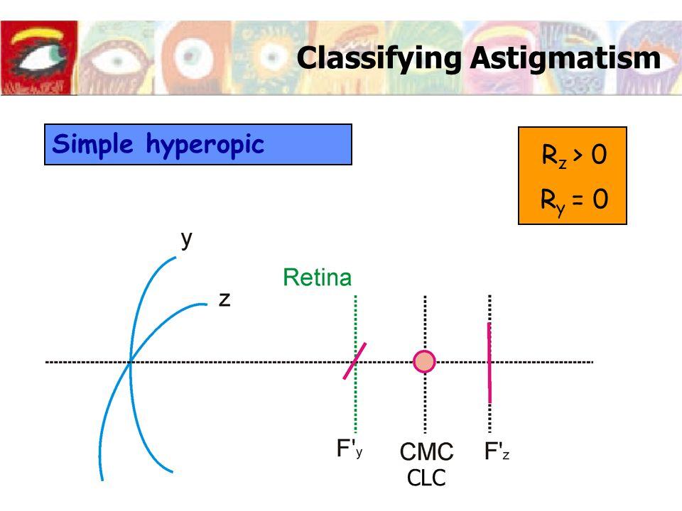 Classifying Astigmatism Simple hyperopic R z > 0 R y = 0 CLC