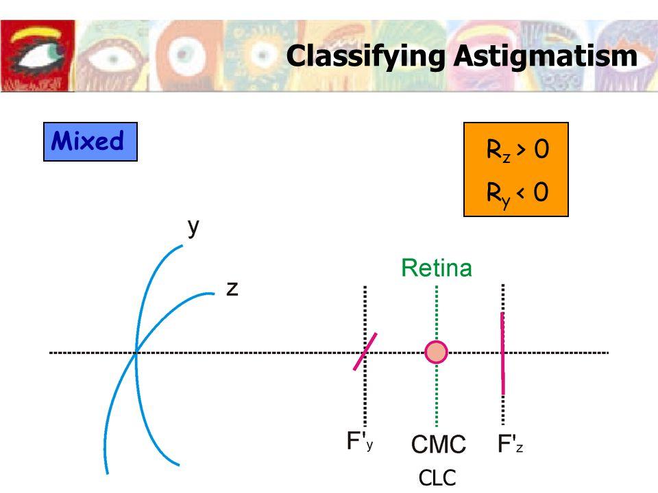 Classifying Astigmatism Mixed R z > 0 R y < 0 CLC