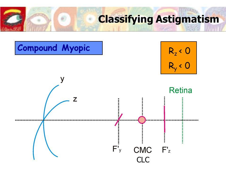 Classifying Astigmatism Compound Myopic R z < 0 R y < 0 CLC