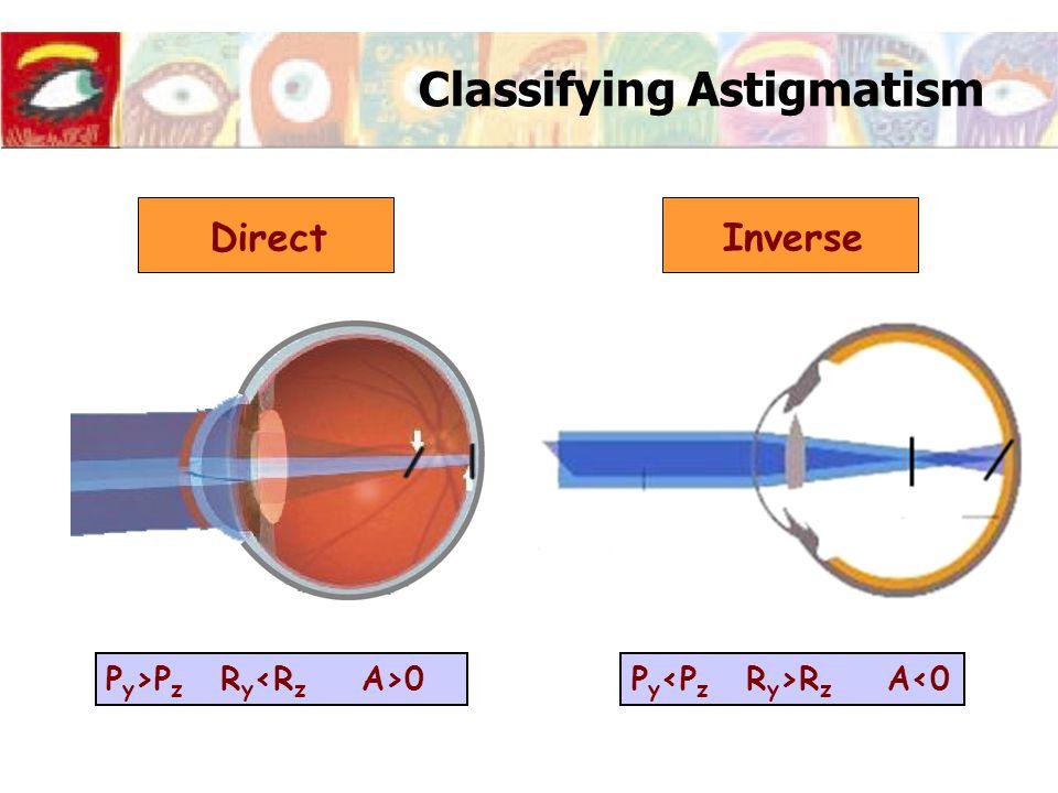 Classifying Astigmatism Direct P y >P z R y 0P y R z A<0 Inverse