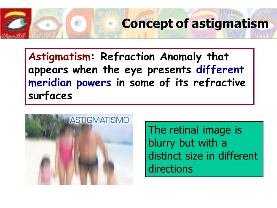 Concept of astigmatism Astigmatism: Refraction Anomaly that appears when the eye presents different meridian powers in some of its refractive surfaces The retinal image is blurry but with a distinct size in different directions