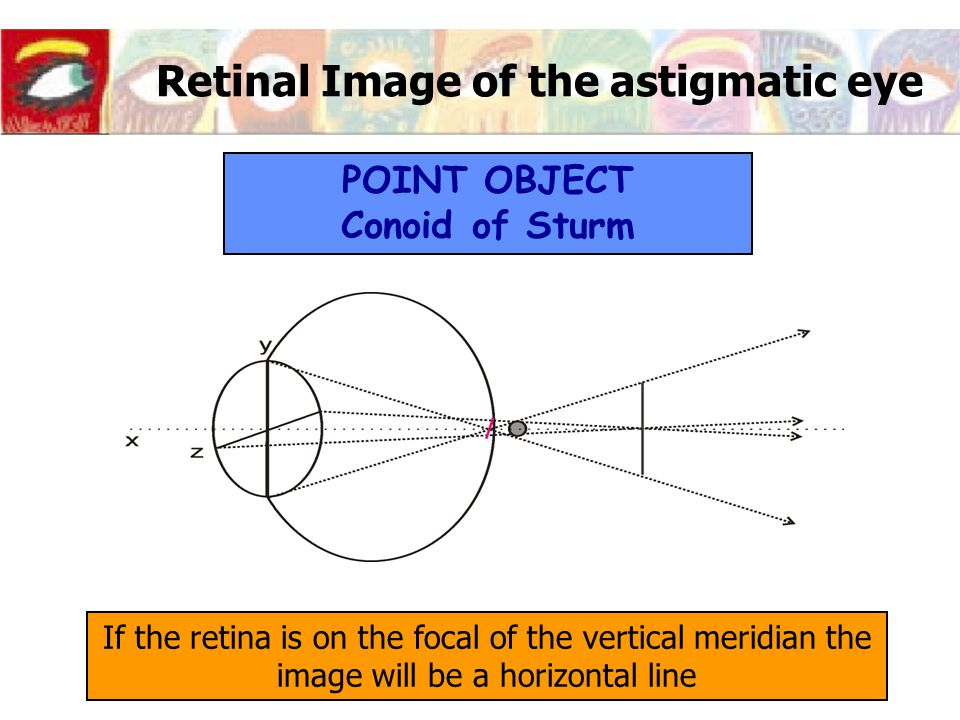 Retinal Image of the astigmatic eye If the retina is on the focal of the vertical meridian the image will be a horizontal line POINT OBJECT Conoid of