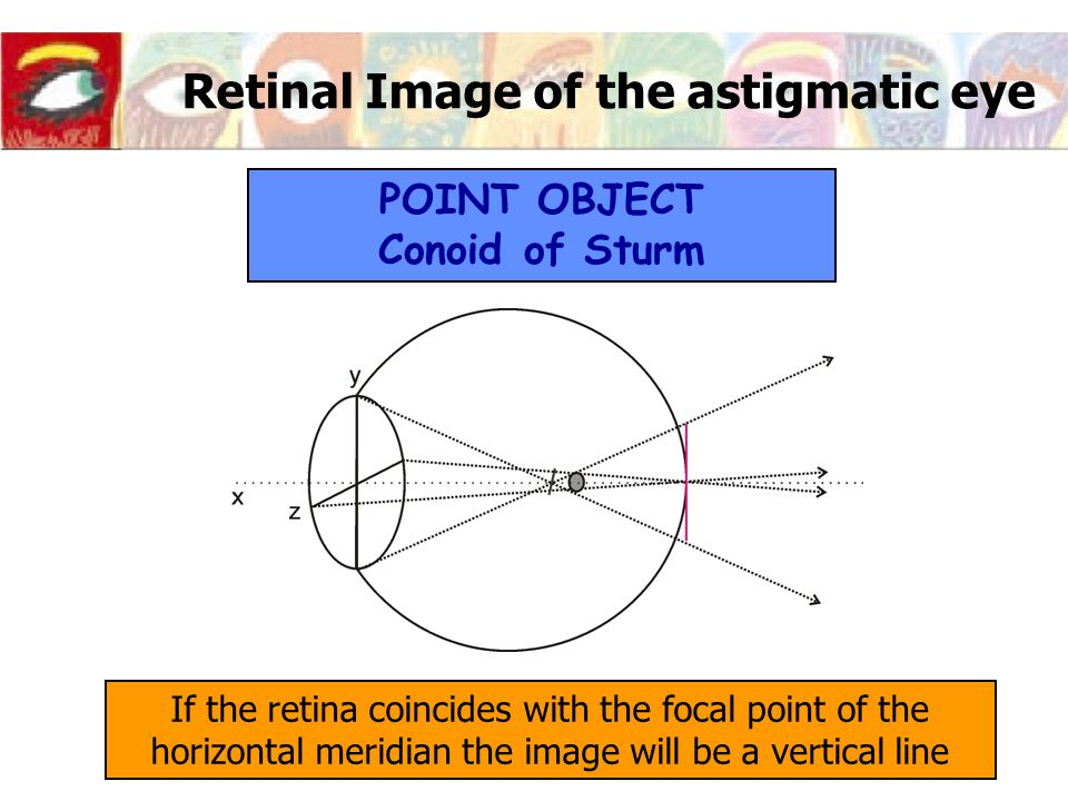 Retinal Image of the astigmatic eye If the retina coincides with the focal point of the horizontal meridian the image will be a vertical line POINT OBJECT Conoid of Sturm
