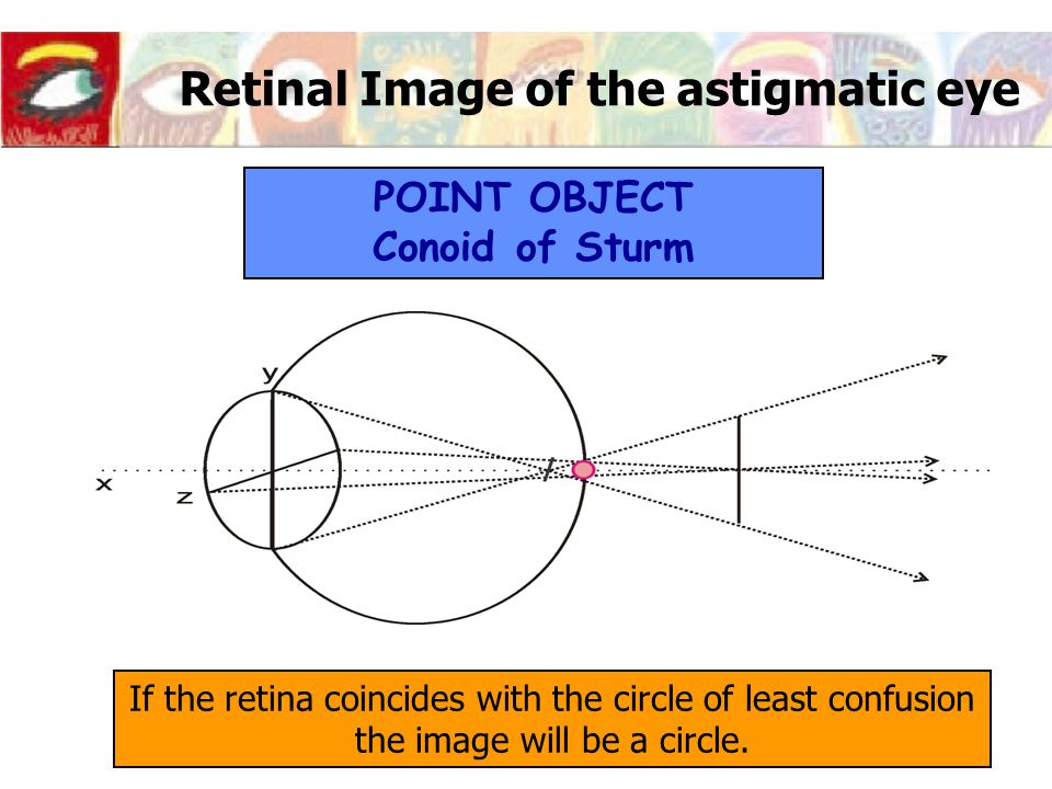 Retinal Image of the astigmatic eye If the retina coincides with the circle of least confusion the image will be a circle.