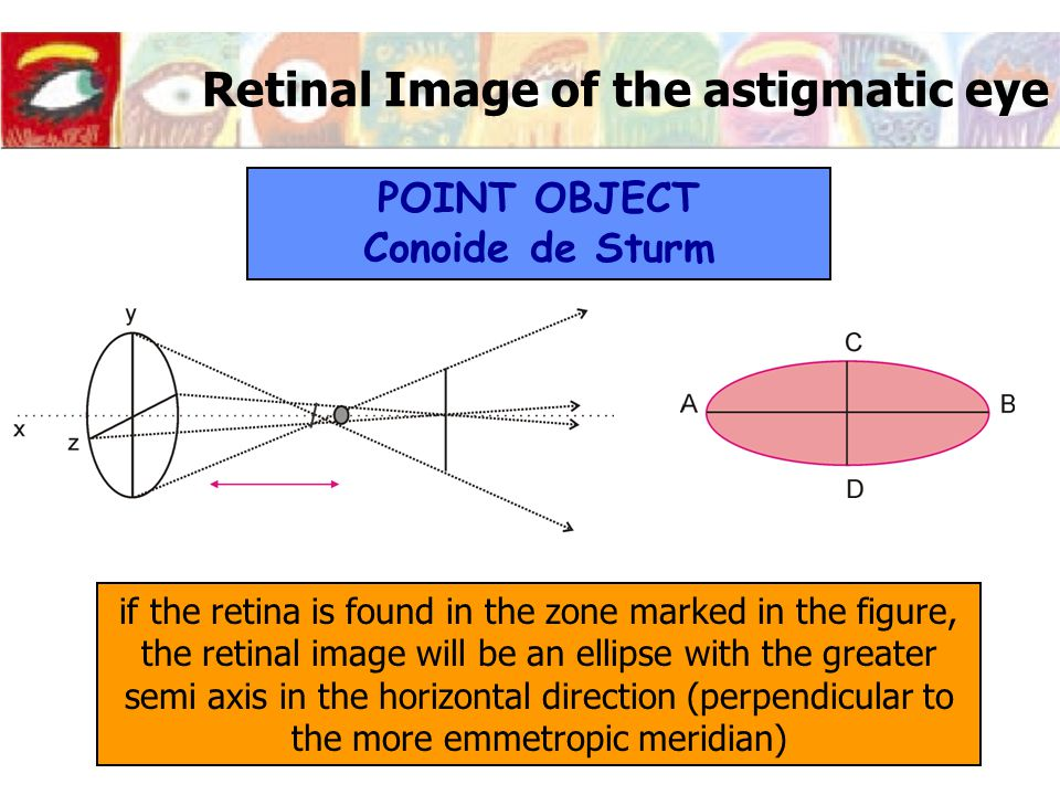 Retinal Image of the astigmatic eye if the retina is found in the zone marked in the figure, the retinal image will be an ellipse with the greater sem